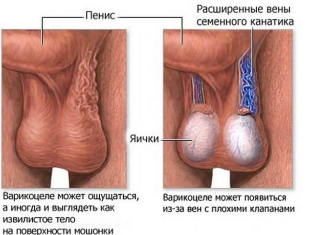 Варикоцеле: фото, симптомы и лечение