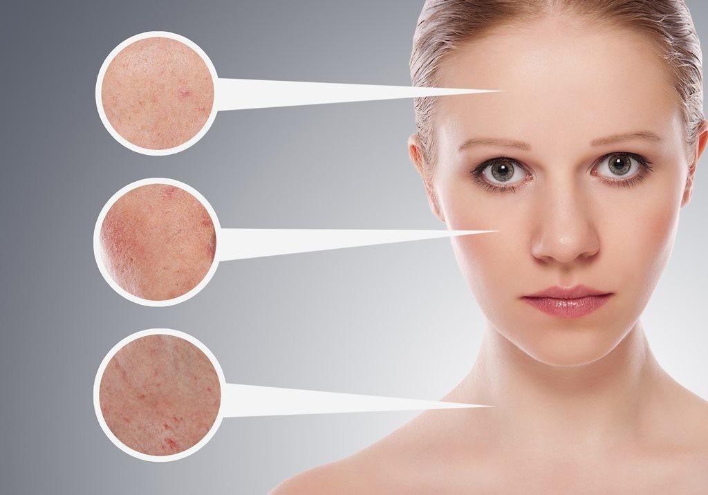 Кожное заболевание на лице
