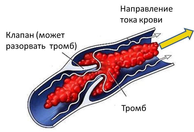 Схематически показана вена в разрезе с тромбом