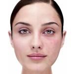 Лечение купероза на лице: современные методы решения вопроса