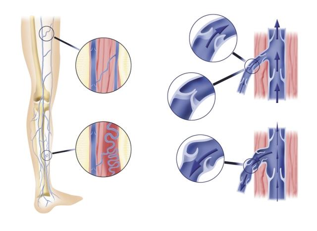 Схематический рисунок заболевания