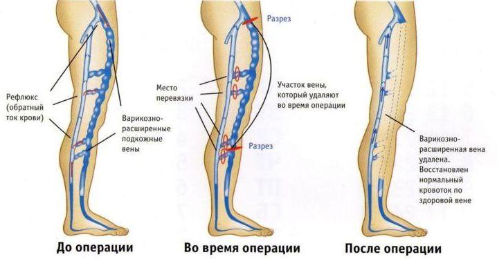 Флебэктомия, удаление вены