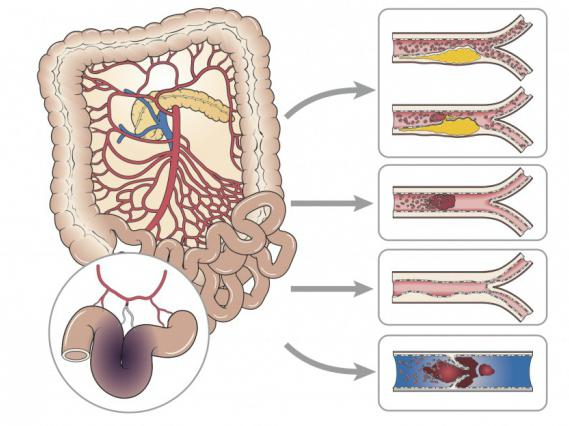 Развитие заболевания после операции