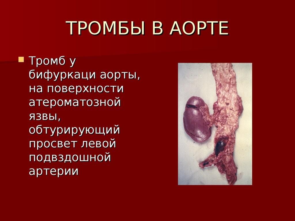 Тромб у бифуркаци аорты