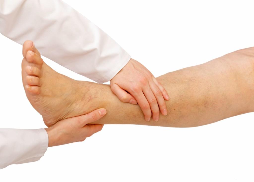 Симптомы лимфедемы ног
