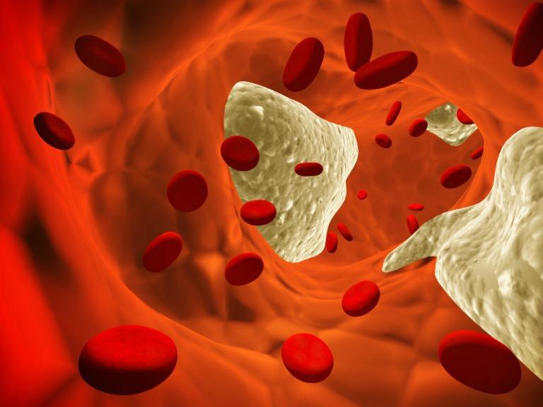 Инфаркт миокарда может прекратить ваше существование или сделать вас инвалидом
