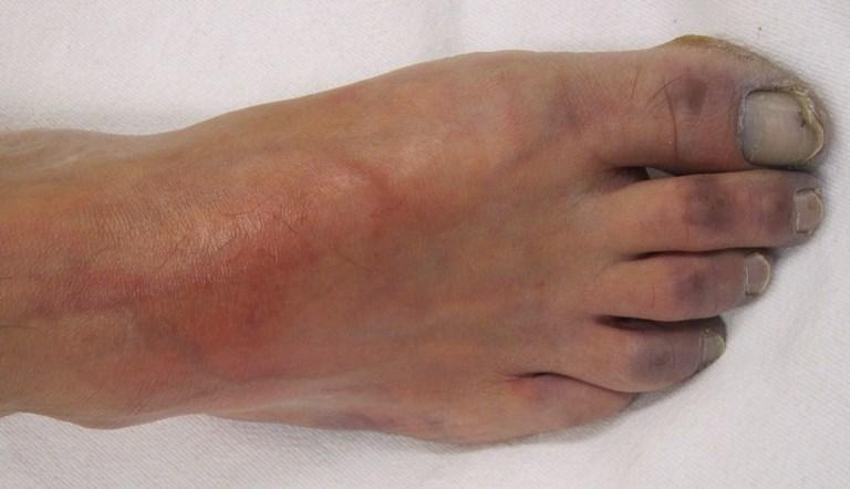 Ноги при атеросклероза суставов