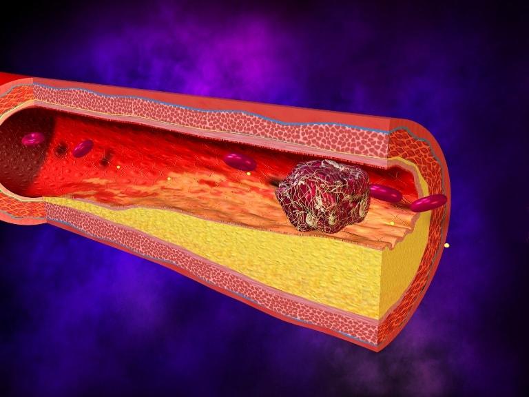 Первичный тромб быстро вырастает и полостью закупоривает сосуды