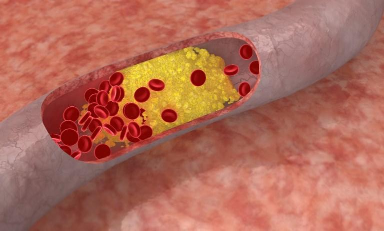 Существует множество методов лечения тромбоцита