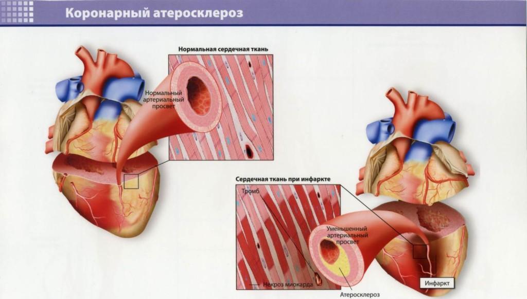 Атеросклероз коронарных сосудов может привести к инфаркту