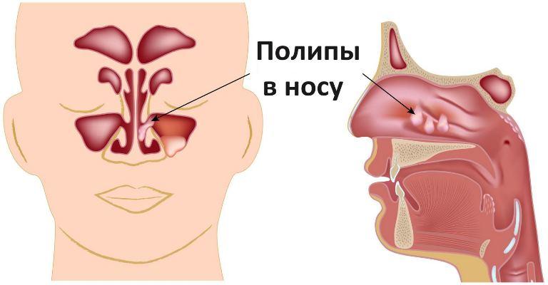 Гранулематоз Вегнера очень опасная болезнь, а её развитию способствует васкулит