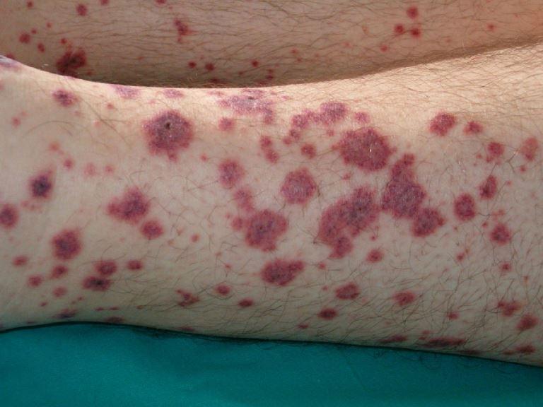 Темно красные пятна на ногах это болезнь пурпура Шенлейн-Геноха
