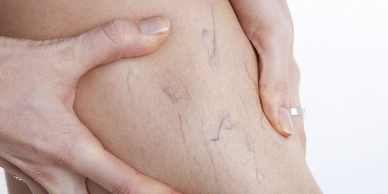 Симптомом варикоза может быть усталость в ногах и частые боли, а также судорги