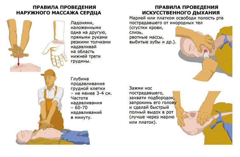 Проведение искусственного дыхания и непрямого массажа сердца