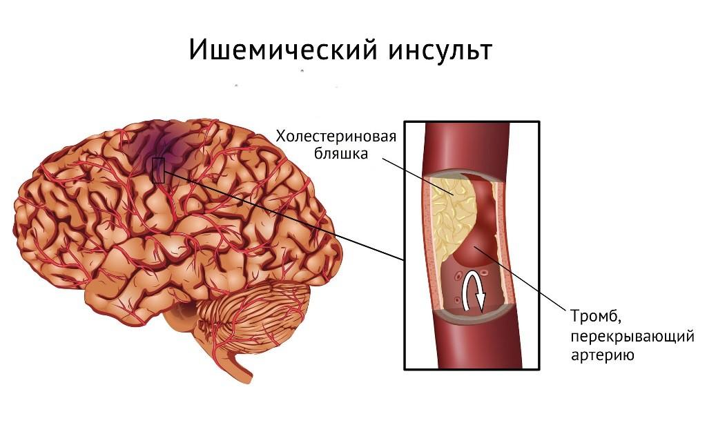 Схематически показан ишемический инсульт