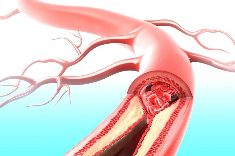 Тромб сосуда или атеросклеротическая бляшка основные причины нарушения кровоснабжения