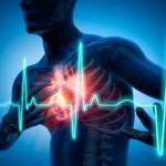 Обширный ишемический инфаркт сердца - Все про гипертонию