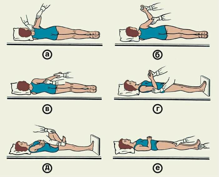 Лечебная физкультура после инсульта