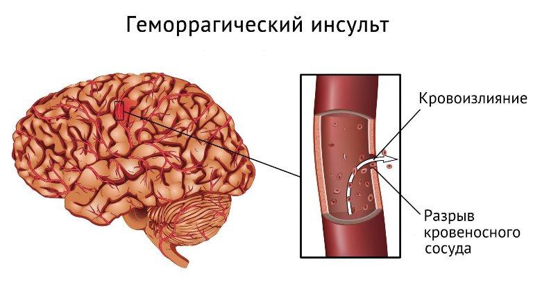 Сильную головную боль вызывает кровь поступившая подкорку черепа и давит на головной мозг