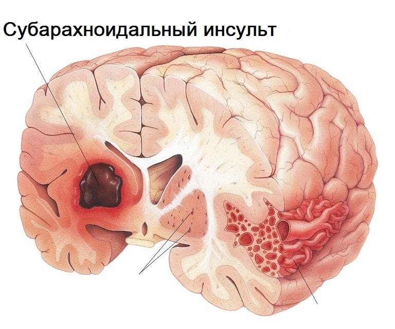 В 50% субарахноидальный инсульт приводит больного к смерти