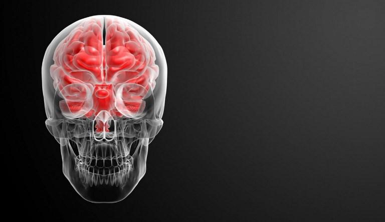 До приезда скорой помощи необходимо предотвратить оттек головного мозга