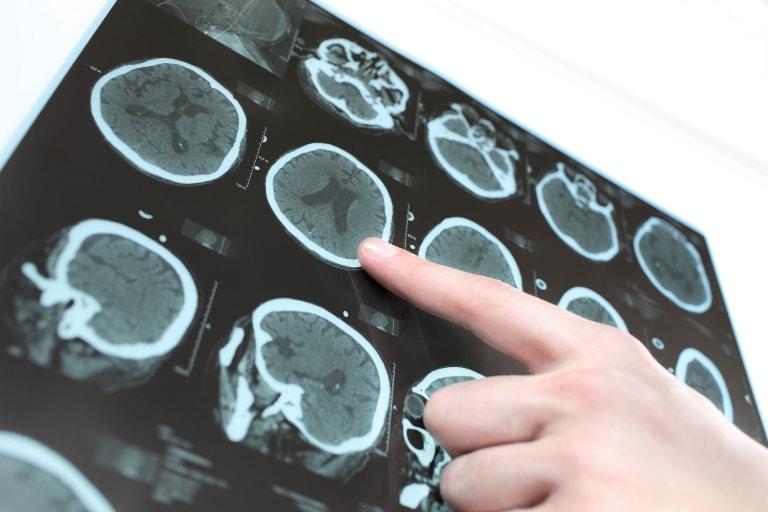 Неправильно определенная форма инсульта может сильно навредить больному