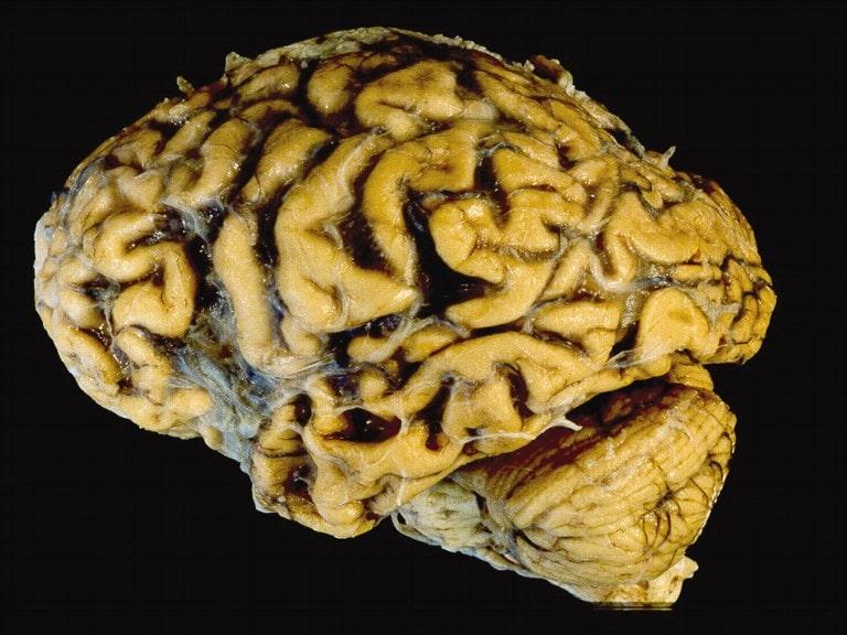 Больной после тотального ишемического инсульта больше не сможет разговаривать или нормально двигаться