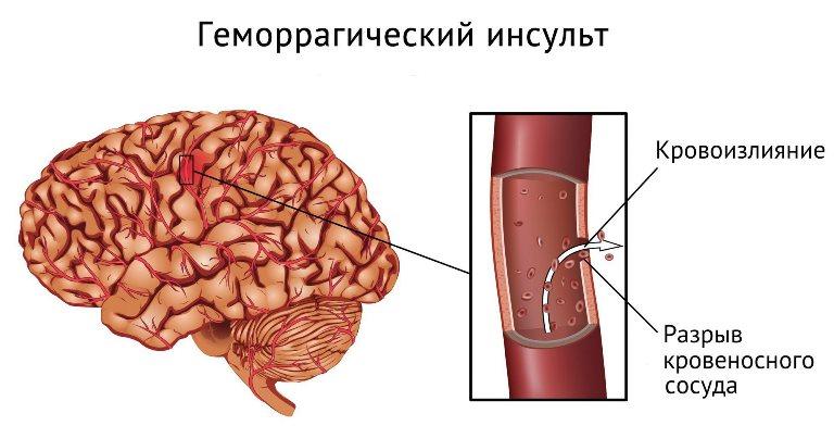 Смертность от геморрагического инсульта составляет меньше 30%
