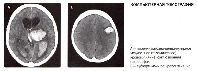 Пример томографии с обеими степенями геморрагического инсульта