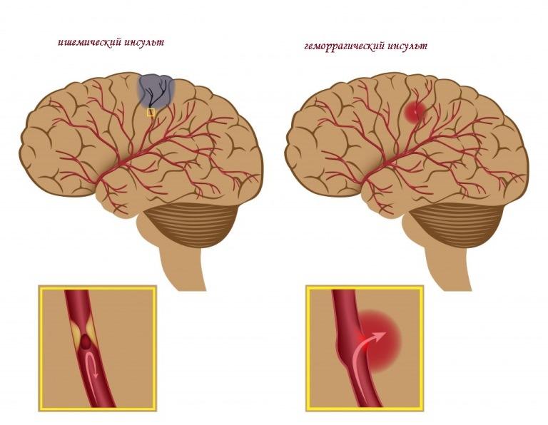 Особенно опасен геморрагический инсульт, так как кровь попадает в подкорное пространство черепа человека