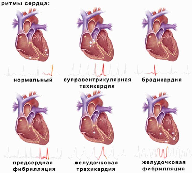 Ритмы сердцебиения