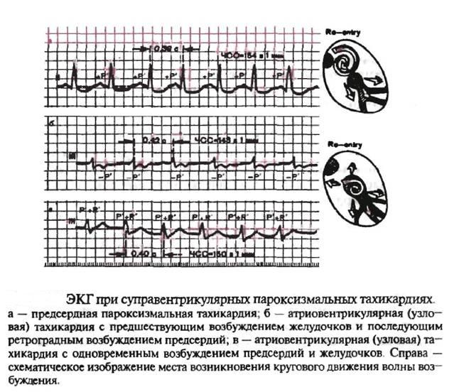 Желудочковая пароксизмальная тахикардия