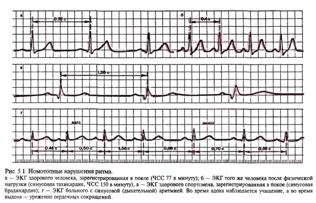 Синусовой тахикардией называется увеличение ЧССот 90 до 150— 180 в минуту при сохранении правильного синусового ритма