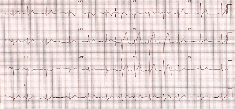 Сердечная недостаточность может вызвать аритмию сердца