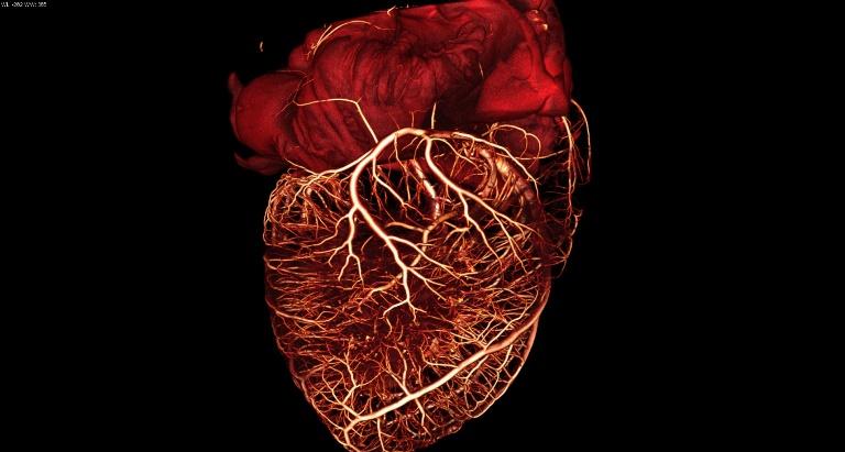 Причиной аритмии сердца может стать что угодно