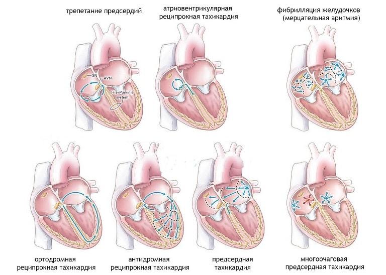 Из-за нарушения ритма сердца может произойти инфаркт миокарда