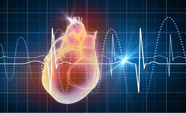 Нарушение ритма сердца - это очень серьезное заболевание
