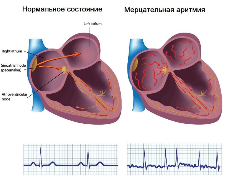 Аритмия сердца тяжелое и серьезное заболевание