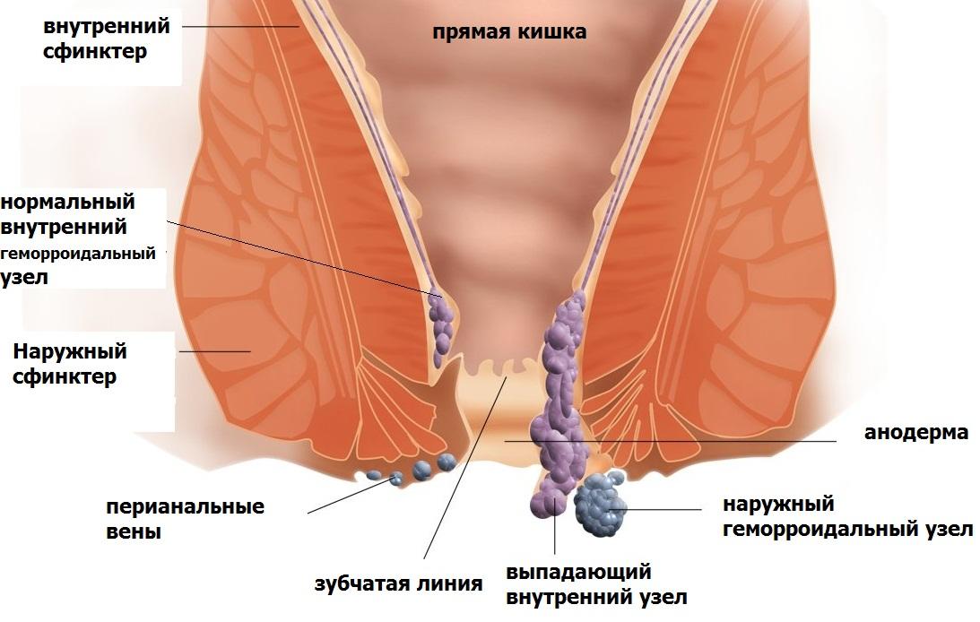 snyat-vospalenie-kozhi-vlagalisha