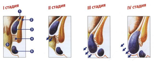В клинике различают 3 степени болезни: продромальный период, острую и хроническую форму