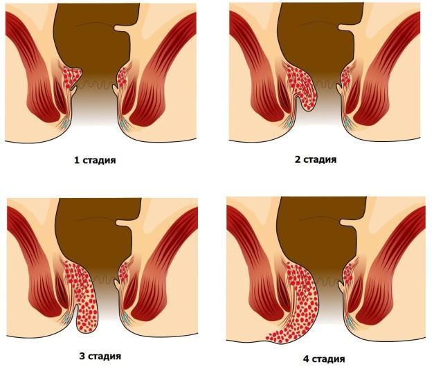 Но если появились такие признаки, как кровяные выделения во время испражнения или ощущение чужеродного тела в области ануса — надо бить тревогу