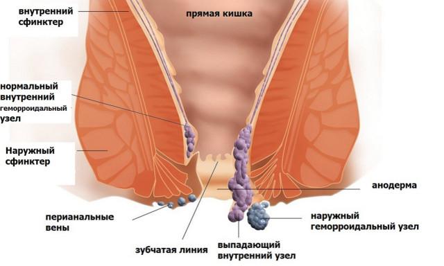 Осложнения внутреннего геморроя могут проявится на 3 – 4 стадии болезни