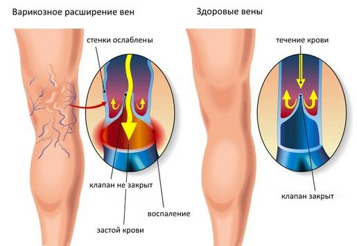 varikoz-2