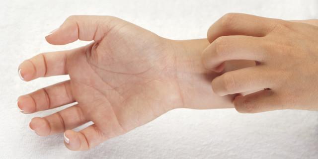 При варикозной экземе лечение направлено на устранение главных причин и симптомов