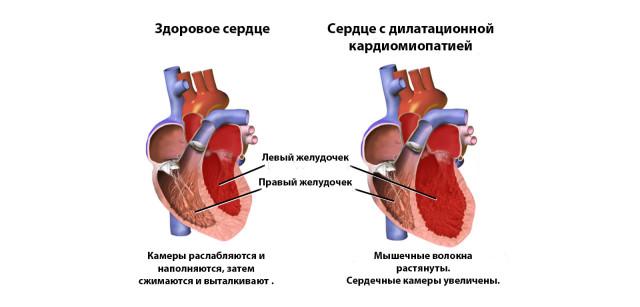 При повышении нагрузок на сердце, мышца, то есть сокращающиеся клетки, увеличиваются в размерах