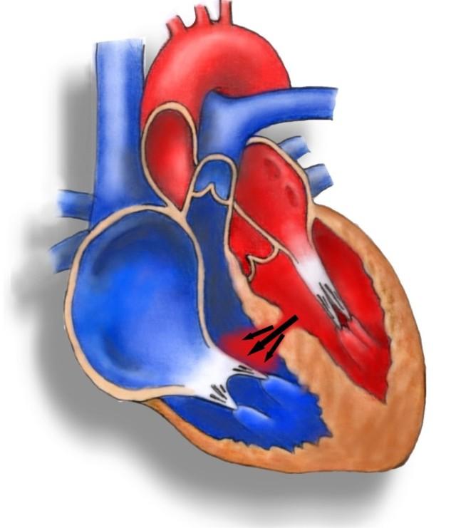 В первом случае подразумеваются пороки клапанов или наследственные нарушения строения сердца