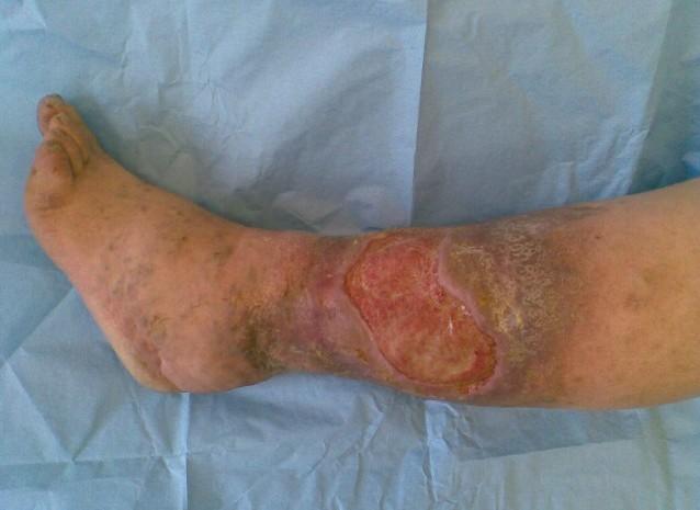 Если не лечить проблему быстро, то болезнь может прогрессировать и привести к серьезным осложнениям