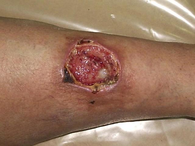 Чтобы поставить точный диагноз по МКБ-10 относительно гнойного заболевания конечностей, необходимо обратиться к специалисту