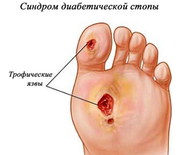 Больной может ощущать озноб, а при прикосновении к пораженной области стопы или голени почувствовать повышение температуры кожи нижних конечностей
