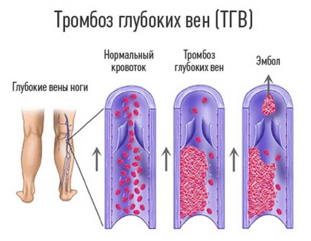 Тромбоз глубоких вен МКБ 10